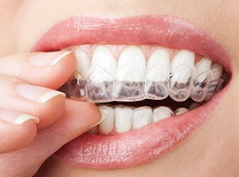 Closeup of smile with Invisalign tray
